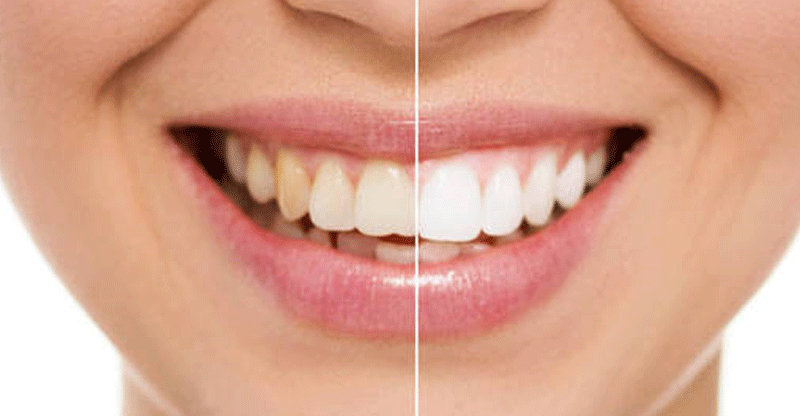 Clareamento Dental Png 1 Png Image