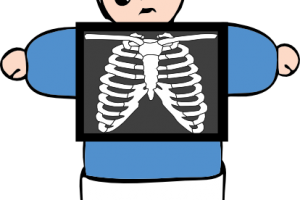 xray clipart png 3